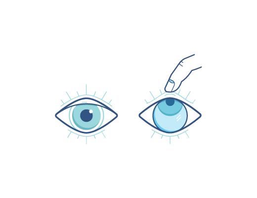 עין מביטה מעלה בזמן שהאצבע מסירה את עדשות המגע