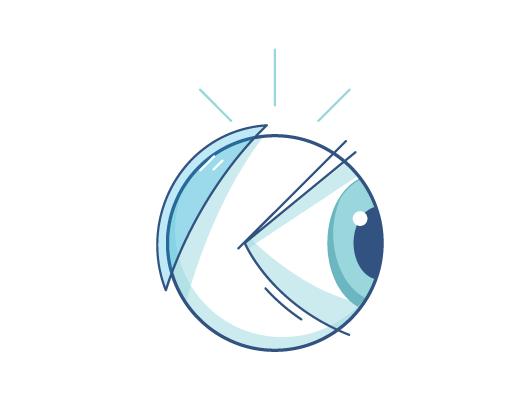 איור של עדשת מגע מאחורי גלגל עין