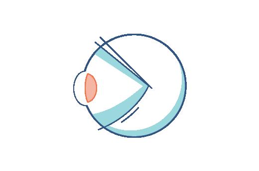 איור של עין עם זוקן ראייה