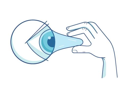 הסרת עדשות מהעין