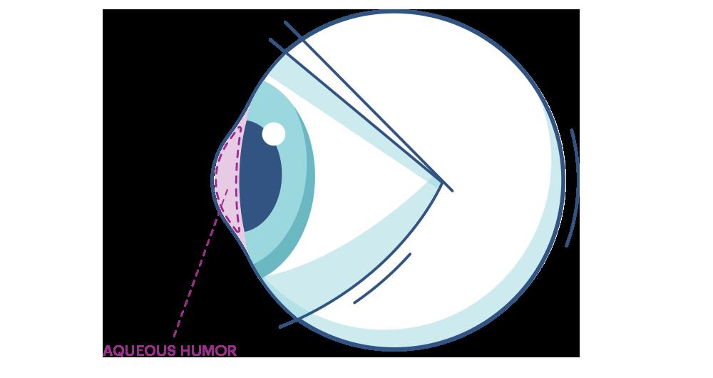 איור של עין עם הדגשה של נוזל האקווס הומור