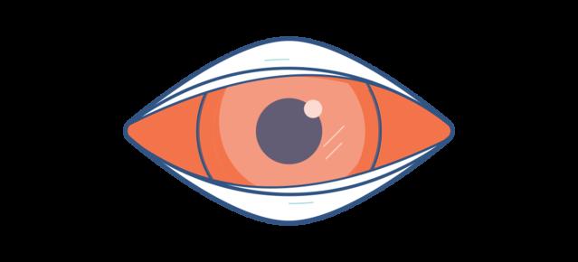 איור של עין אדומה וכואבת