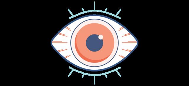 איור של עין יבשה, אדומה וכואבת