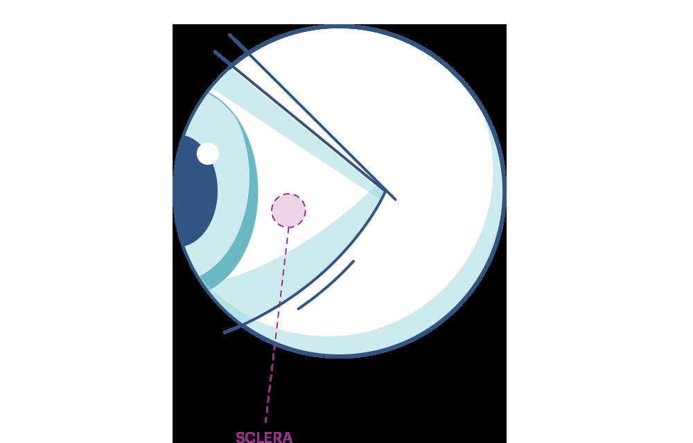איור של עין עם הדגשה של לובן העין