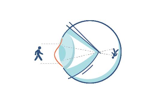 איור של עין עם אסטיגמטיוּת