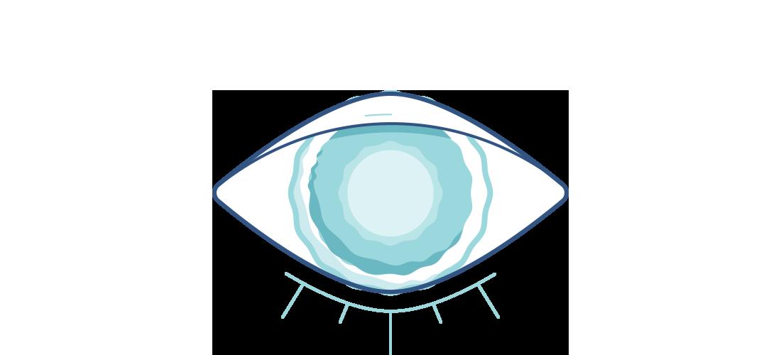איור של עין עם עכירות
