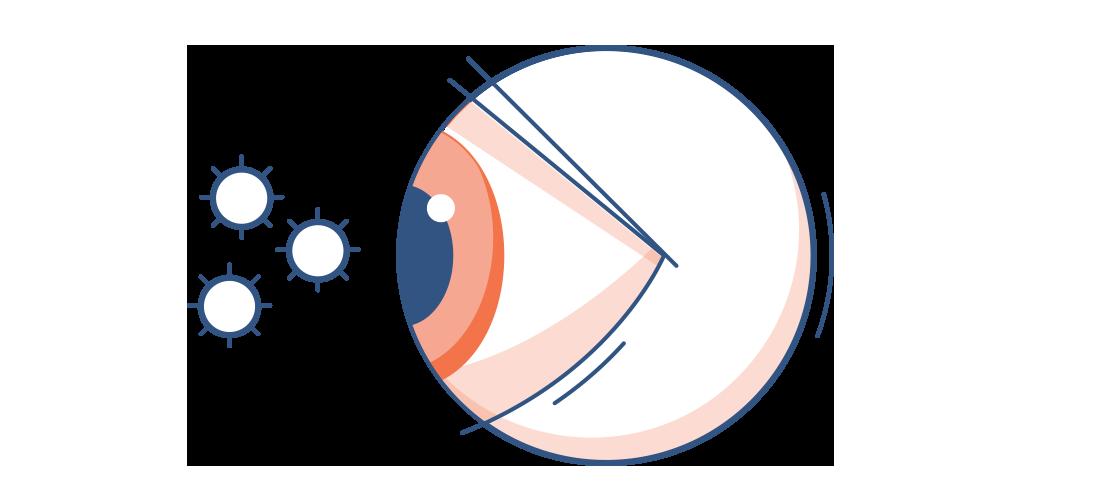 איור של עין אדומה עם חלקיקי אבקת פרחים באוויר שמסביב