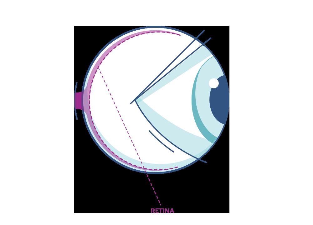 איור של עין עם הדגשה של הרשתית