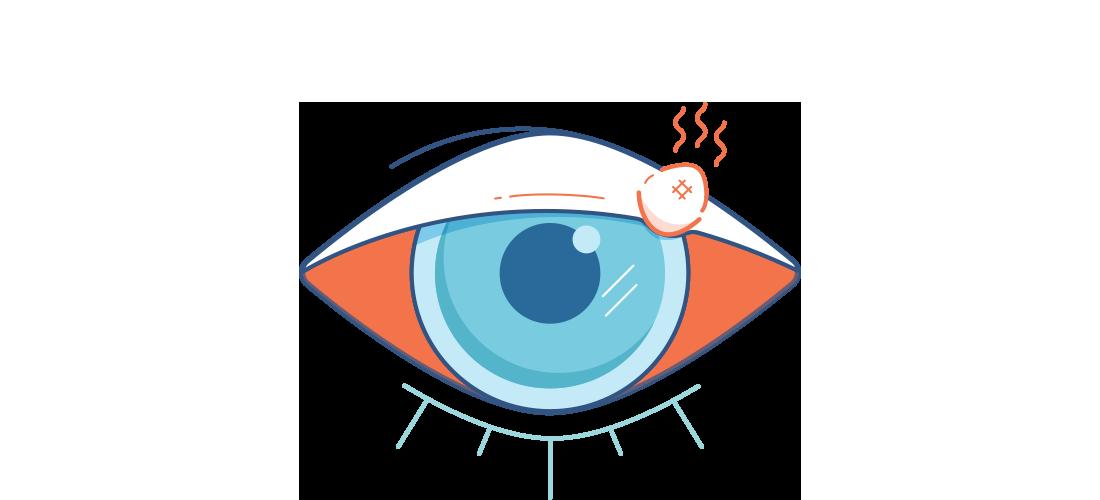 איור של עין אדומה וכואבת עם שעורה אדומה